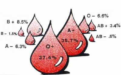 Blood Type Frequencies in the U.S.A. - Rhesus Negative